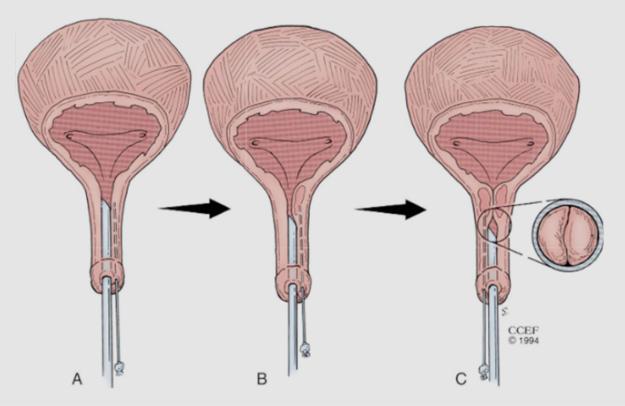 uroblog_incontinenza_urinaria_3
