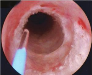 Uroblog_tumore_uretere