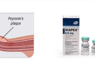 Efficacia e Sicurezza del protocollo con Collagenasi di Clostridium histolyticum (CCH) per il pene curvo da malattia di Peyronie o Induratio Penis Plastica (IPP)