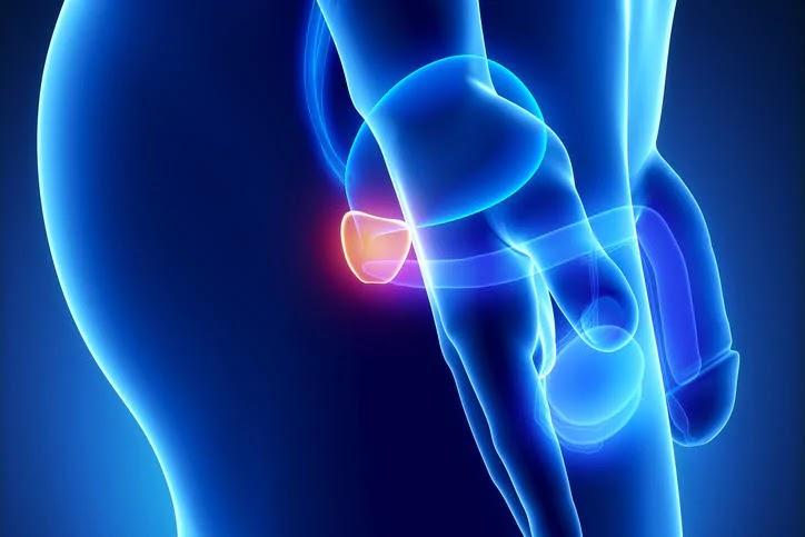 adenoma prostatico è un tumore